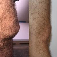 Plumbers knee vs Office Workers knee
